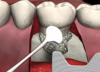 Bone Grafting in Eden Prairie, MN