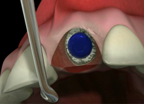 Dental implant placement into socket