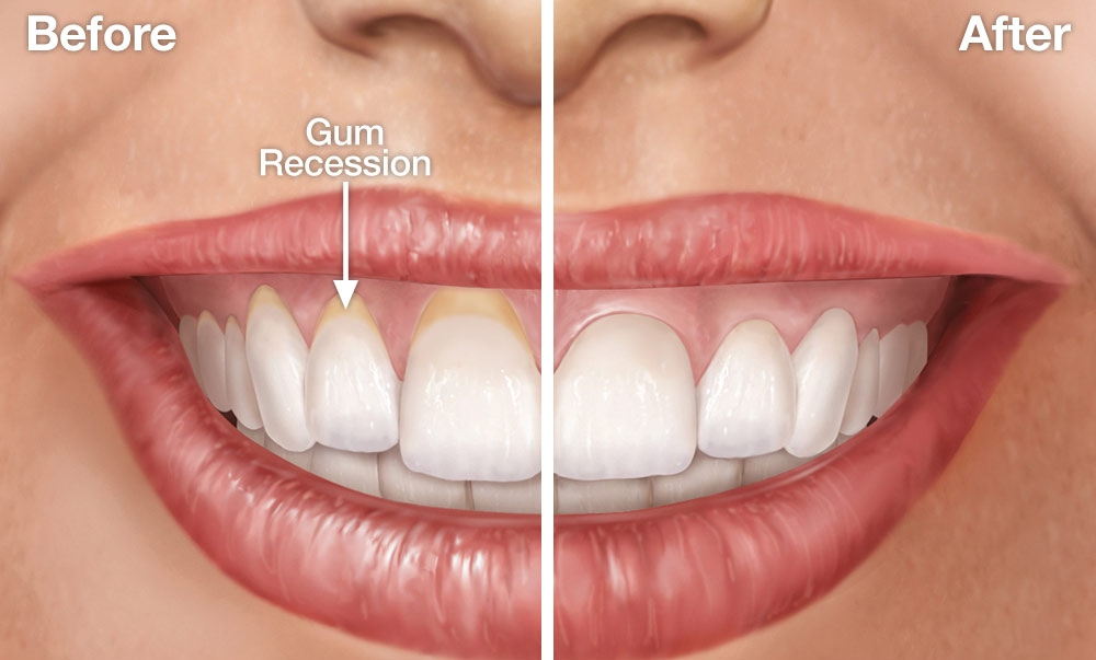 Image result for gum recession