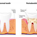 periodontist in Eden Prairie MN