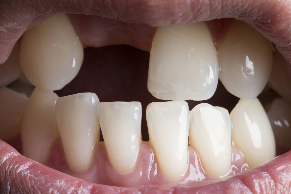 replace your missing teeth with all on 4 dental implants