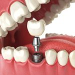 Dental Implant Information For National Safety Month