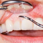 LANAP Treats Gum Disease Before It Worsens
