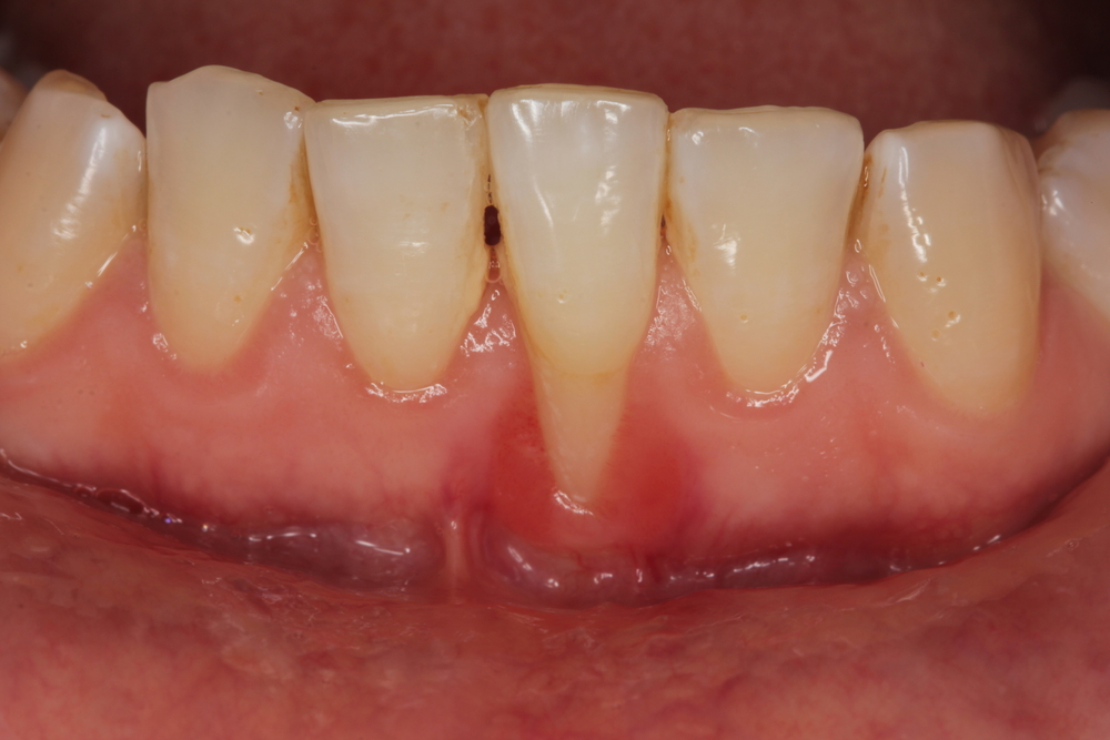 The Risk of Gum Recession