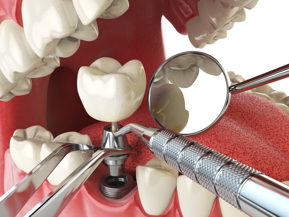 The Low Down on Dental Implants