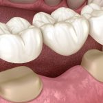 How A Dental Bridge Fits In Your Mouth