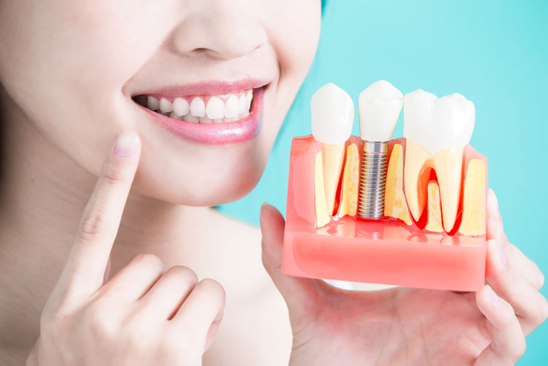 Dental Implant Patient With Dental Implant Model In Hand