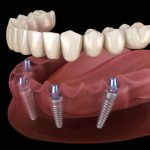Full Arch Dental Implant Model