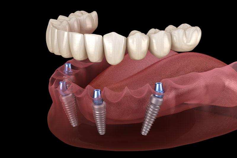 Full Arch Dental Implant Model
